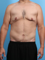 After Weight Loss - Case 23944 - After